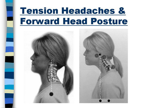 Headache From The Neck – Relief May Be Just a Neck ...