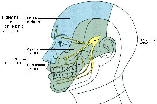 Facial nerve pain from